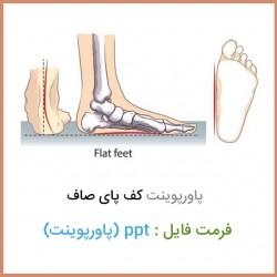 دانلود فایل پاورپوینت کف پای صاف Flat foot