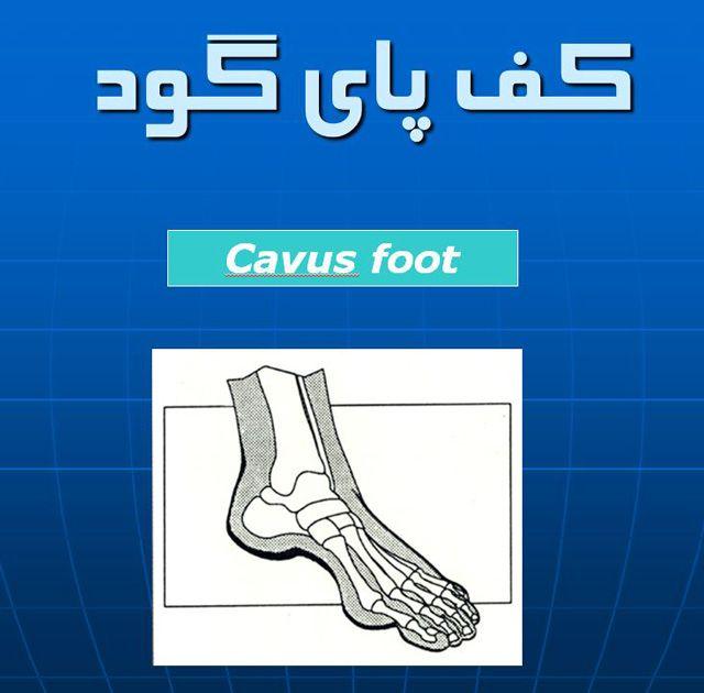 فایل پاورپوینت كف پاي گود Cavus foot